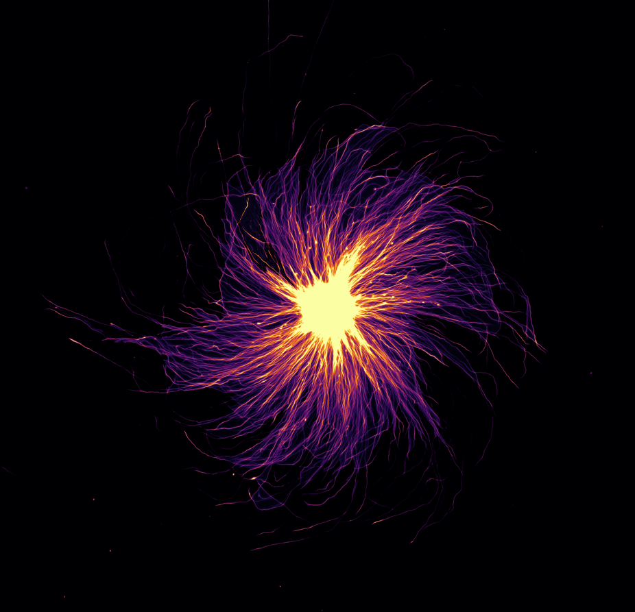 Axons of human iPSC derived motorneurons growing out of a neurosphere